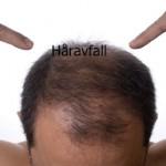 mot håravfall