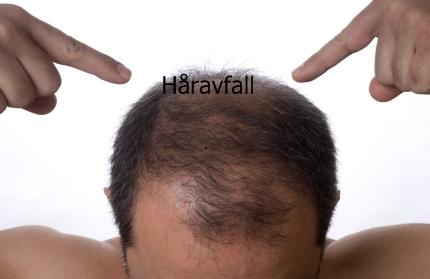 akupunktur mot håravfall