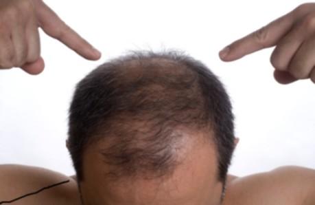 tappar hår