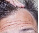 dölja håravfall