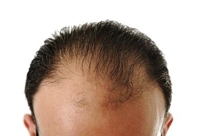 tappar hår  2